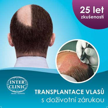 čtverec transplantace